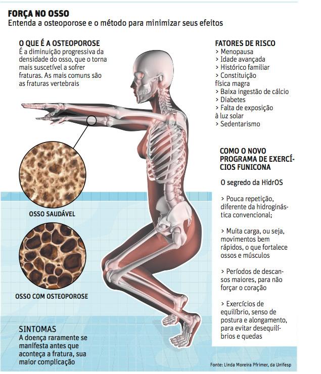 http://saudeebemestargeia.files.wordpress.com/2011/10/osteoporose-iamgem.jpg